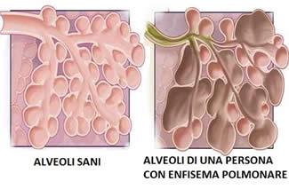 enfisema1