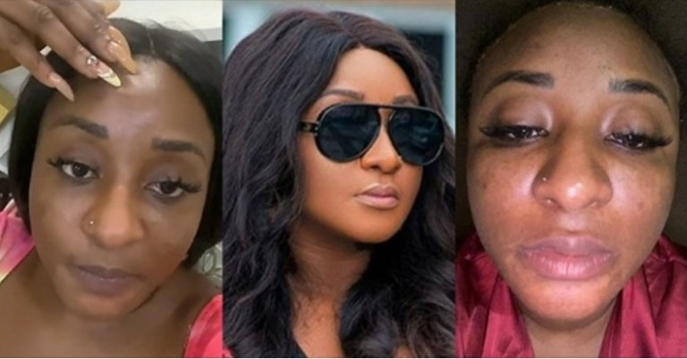 """UCScreenshot20200928092841 """"I've been depressed for days"""" – Actress, Ini Edo cries out as she suffers skin damage (Video)"""