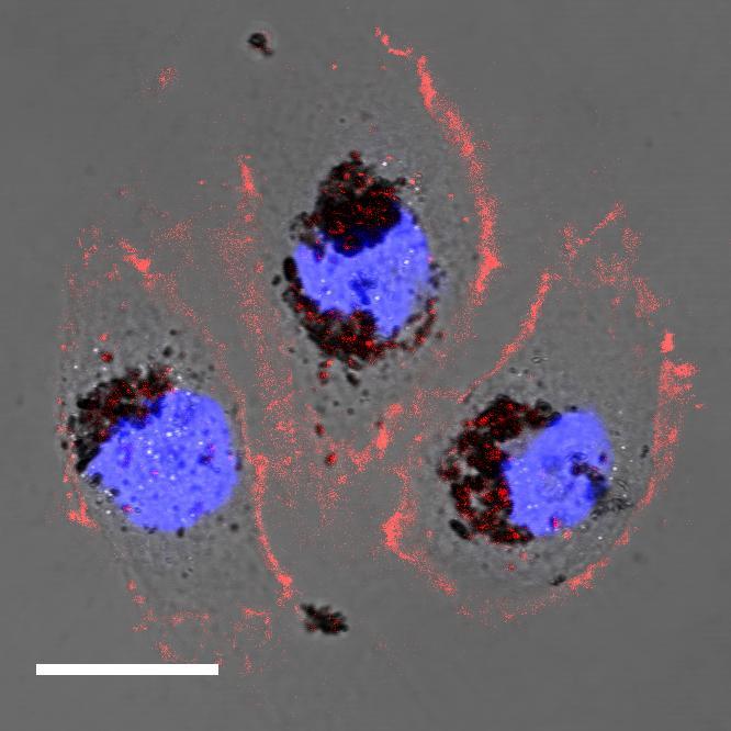 Human cells treated with selenomelanin nanoparticles.  Image credit: Northwestern University