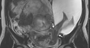 rottura dell'utero
