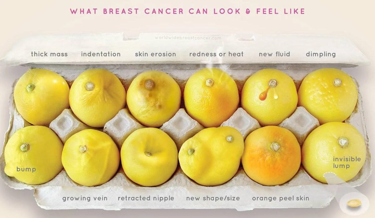 Una foto che aiuta le donne a scoprire un cancro al seno è virale (FOTO)