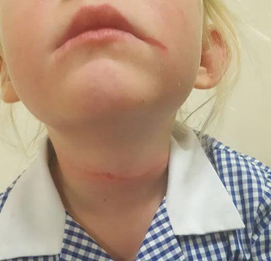 """""""Mia figlia stava soffocando per un cappello"""": una mamma allerta i genitori"""