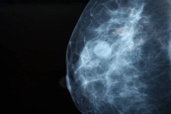 cancro al seno triplo negativo