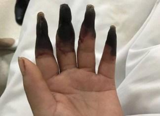 donna dita nere