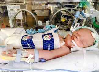 bambino sopravvive dopo che gli staccano la spina