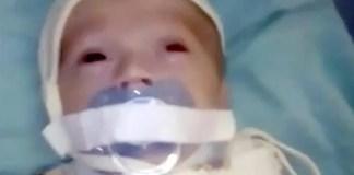bambino con ciuccio legato alla bocca