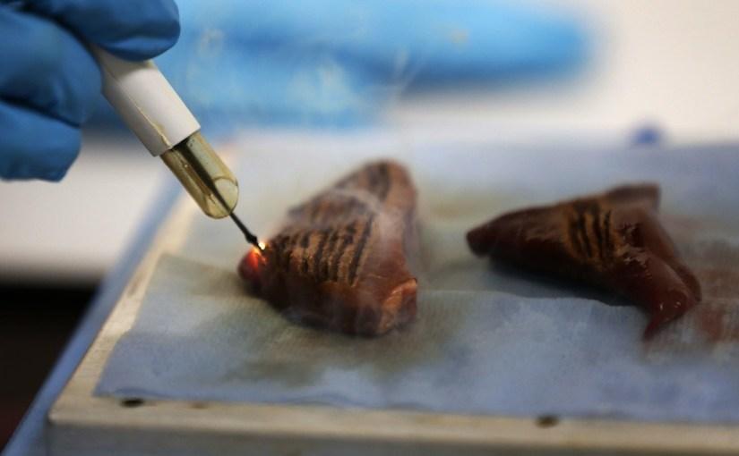 Un bisturí que huele el cáncer mientras corta