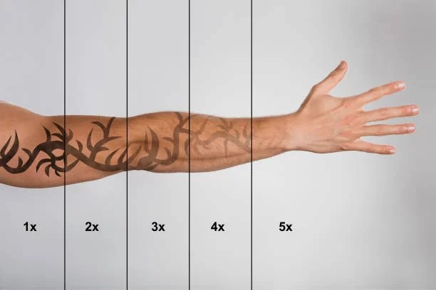 How to speed up your Laser Tattoo Removal treatments ...