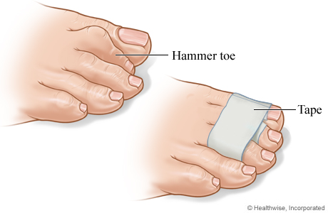 mallet toe causes