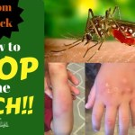 MOM HACK: How to STOP the ITCH!