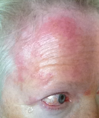 Can I Give Someone Herpes/shingles Without Them Coming Near My Rash? 2