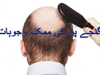 Causes of baldness for men and women in urdu and hindi