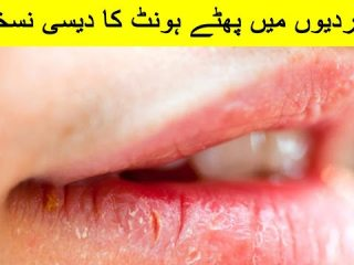 How to Get Rid of Painful Cracked Lips in urdu and hindi