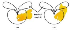 seminal vazikul