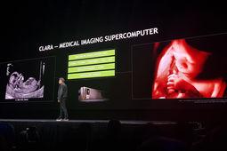 Nvidia lance l'initiative Clara pour doper l'imagerie médicale à l'intelligence artificielle