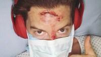 Shaun White Accident
