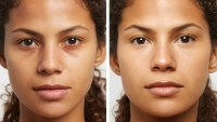 before and after concealer
