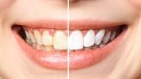 Teeth Whitening Kit Amazon