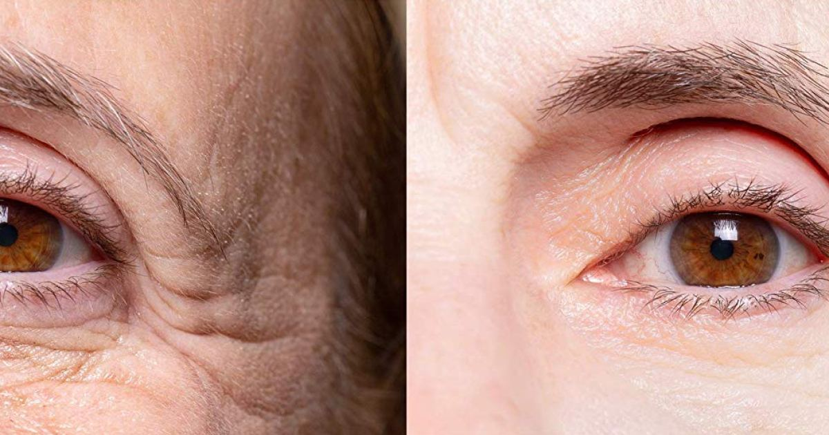 This Potent Eye Cream Can Reduce Fine Lines and Wrinkles in Minutes