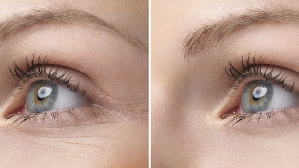eye-wrinkle-before-after