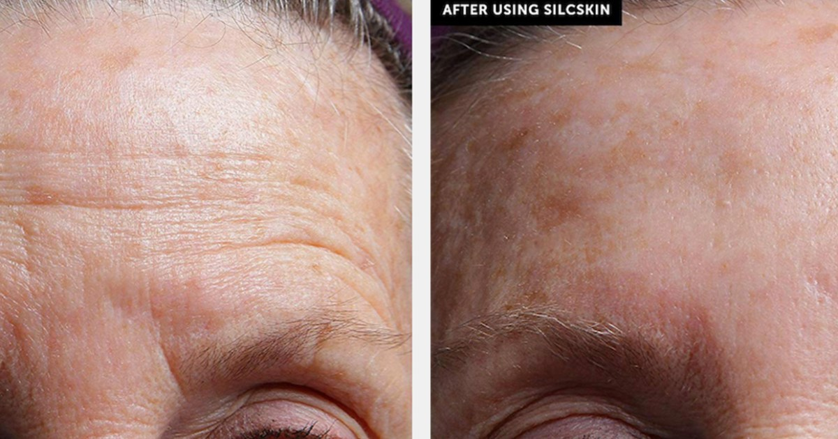 Sleep Your Wrinkles Away With These Professional Smoothing Patches