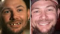 John Finlay before and after new teeth Tiger King p