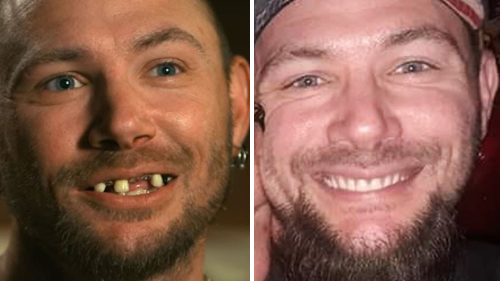 John Finlay Shares Details About His New Teeth Debunks Rumors