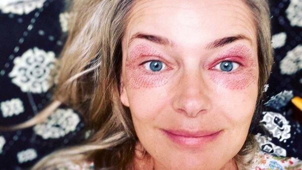 Paulina Porizkova Looks 'Freaky' After Getting 2 Skin Treatments