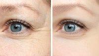 before-after-eye-wrinkles-serum-cream