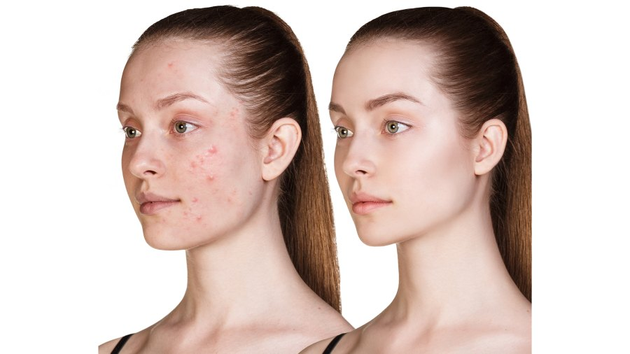 Before-After-Skincare-Stock-Photo