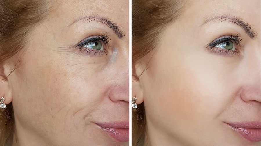Before-After-Brighter-Skin-Stock-Photo