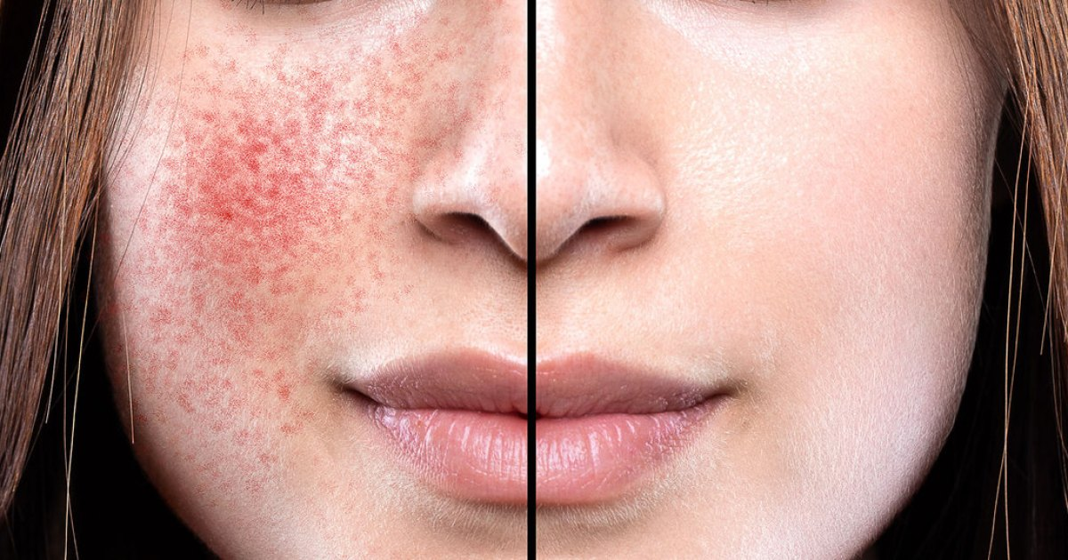 88% Noticed a Reduction in Skin Flushing With This Anti-Redness Concentrate
