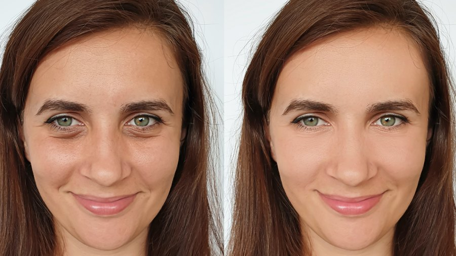 Before-After-Eyelift-Beauty-Shot