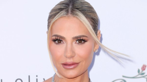 Dorit Kemsley Shuts Down Nose Job Rumors Once and For All