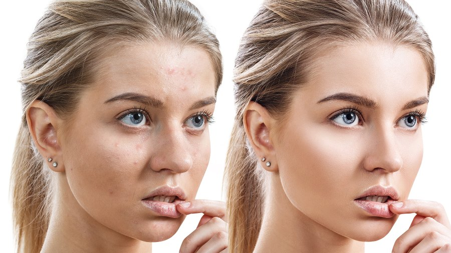 m3-facial-serum-before-after