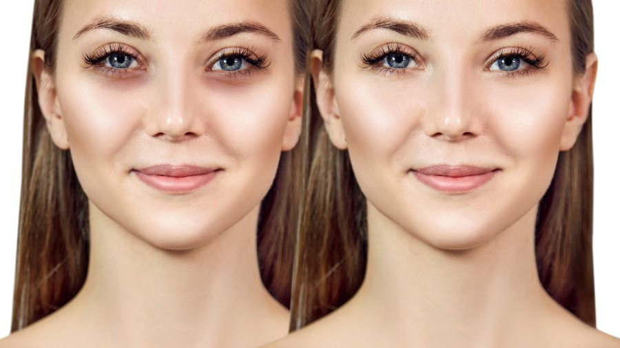 Before-After-Concealer-Stock-Photo