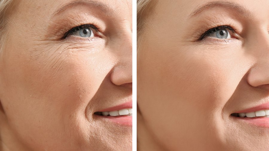 wrinkle-before-after