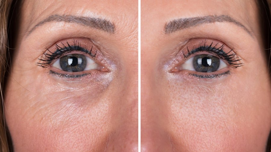 Wrinkle-Treatment-Before-After