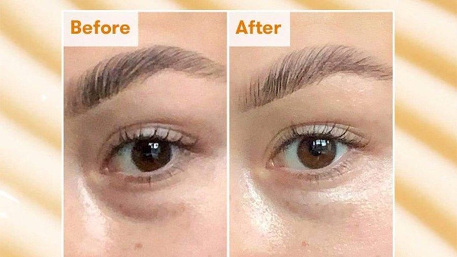 ren-eye-cream-before-after