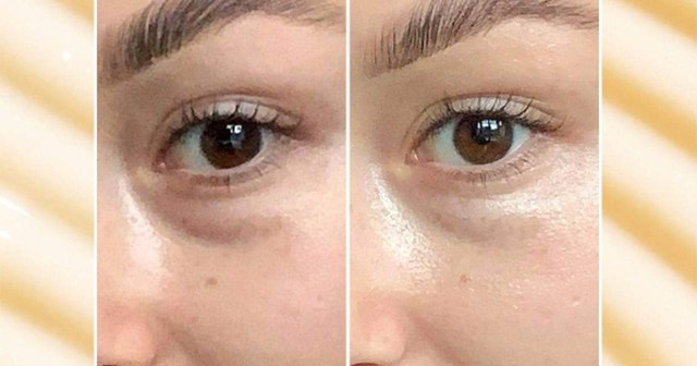 This Eye Cream Could Visibly Reduce Dark Circles in Just 7 Days.jpg