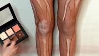 Leg Contouring