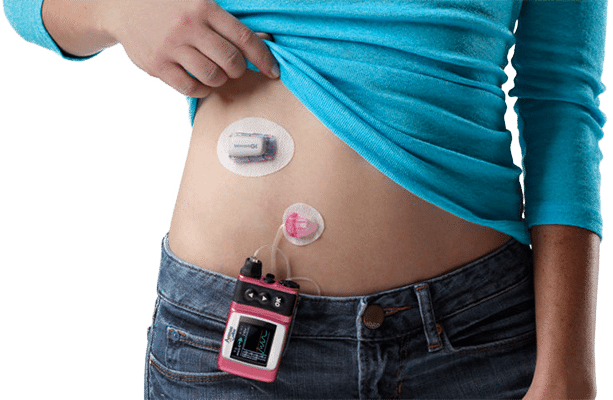 Insulin Pump & CGM Connections