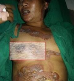 काठमाण्डौंमा श्रीमानले जिउँदै श्रीमती जलाए