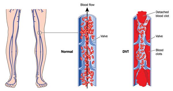 veneuze trombose en flebitis zna