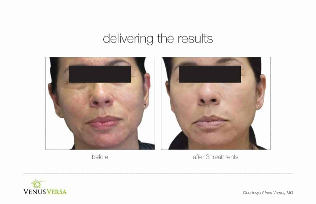 image of woman's face before and after skin resurfcaing