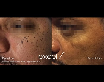 excel V™ Laser   Valley Skin Institute