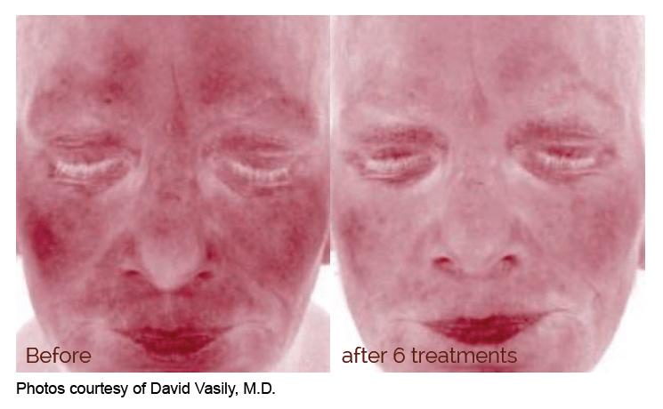 Laser Treatment for Redness