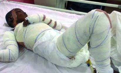 The victim, Ita Bassey-Eno on her hospital bed....