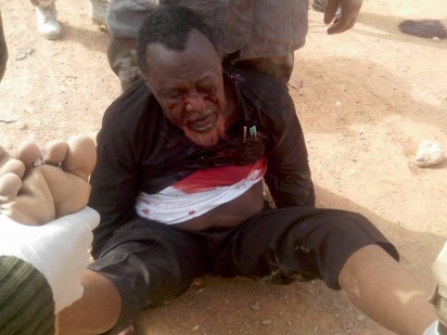 Photo of wounded El-Zakzaky which circulated on social media