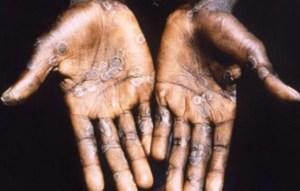 Monkey pox, Lagos
